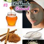 DIY Easy Blackhead Removal : #3 How to Get Rid of Blackheads Fast