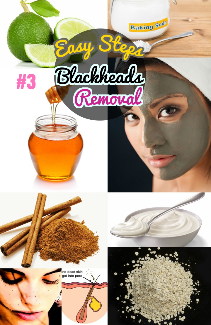 How to get rid of blackheads easy and fast steps